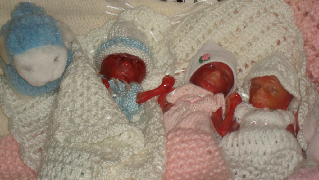 Cadyn Adalyn And Mikayla Still Birth Day